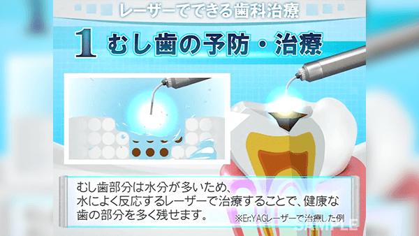 歯科医院配信用 広告アニメーションDEMO REEL